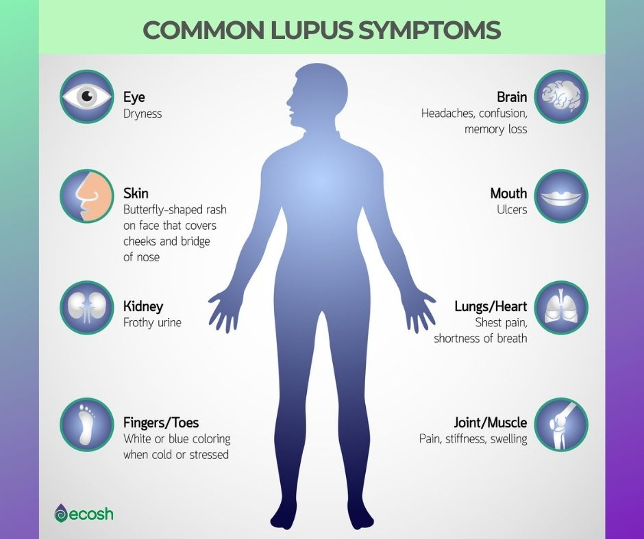 Ecosh_Common_Lupus_Symptoms
