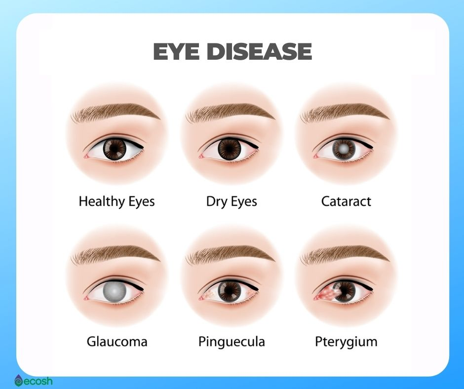 Ecosh_Eye_Diseases_Dry_Eyes_Pinguecula_Pterygium_Cataract_Glaucoma_Eye_Health_Eye_Vitamins