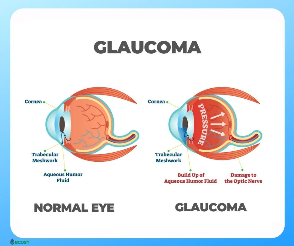 Ecosh_Eye_Diseases_Glaucoma_Eye_Health_Eye_Vitamins