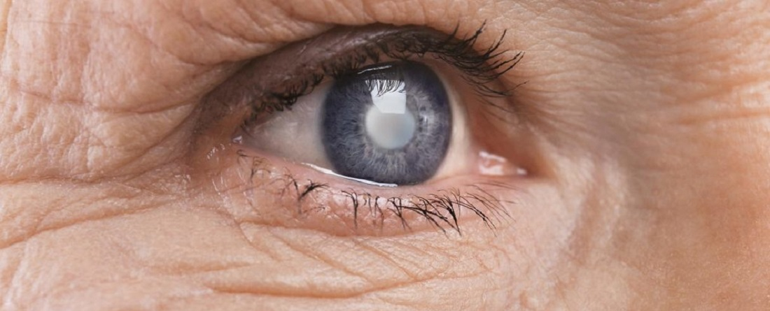 Healthy_Eyes_Eye_Vitamins_Cataract