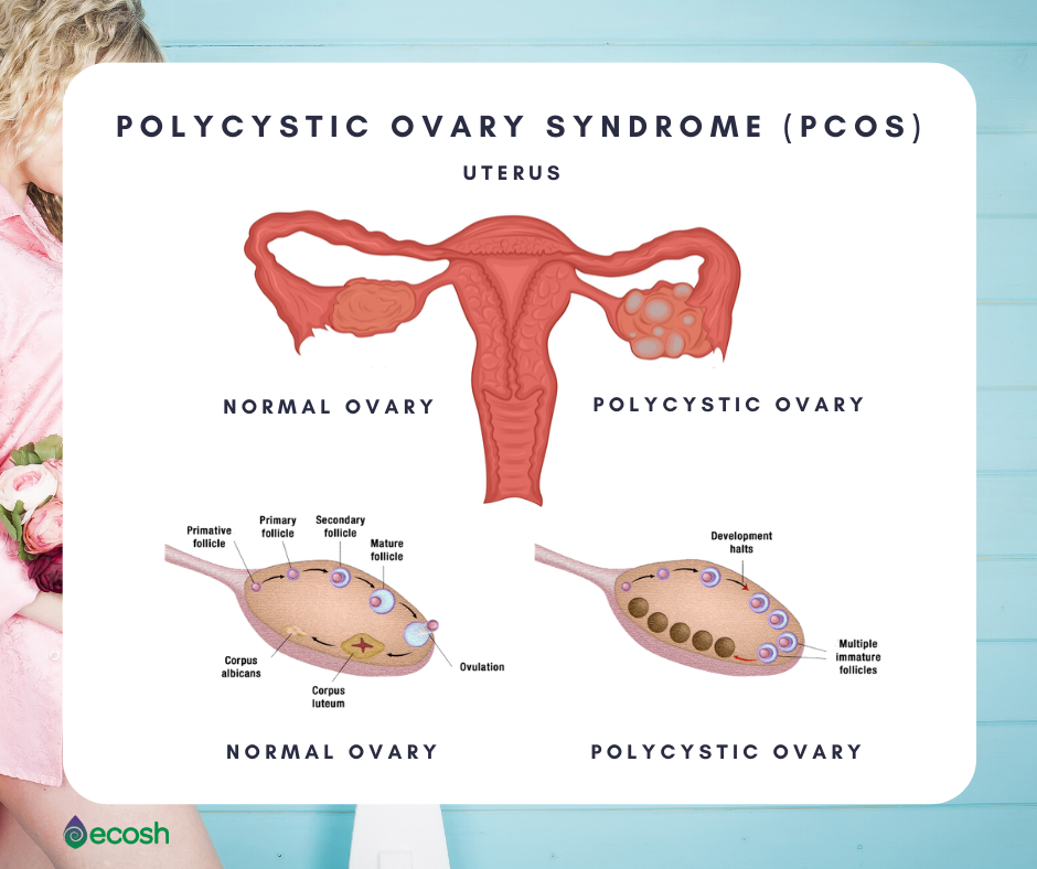 Ecosh_polycystic_ovary_syndrome_PCOS