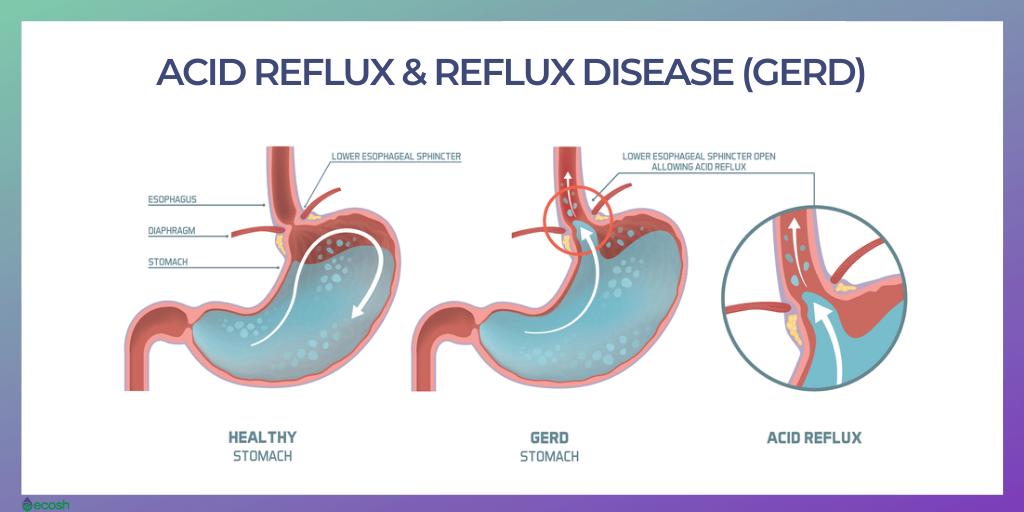 Gastroesophageal Reflux Disease (GERD)_Acid Reflux_Heartburn_Home_Treatment- Symptoms, Causes
