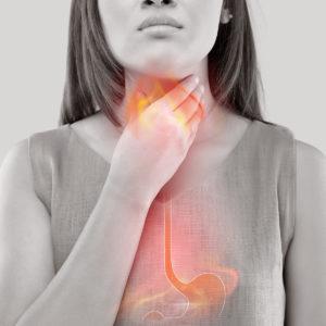 Acid reflux and reflux disease GERD