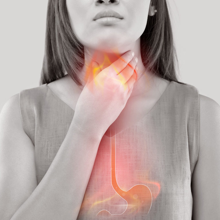 GASTROESOPHAGEAL REFLUX DISEASE (GERD) – Symptoms, Causes, Natural Home Remedies and Reflux Diet