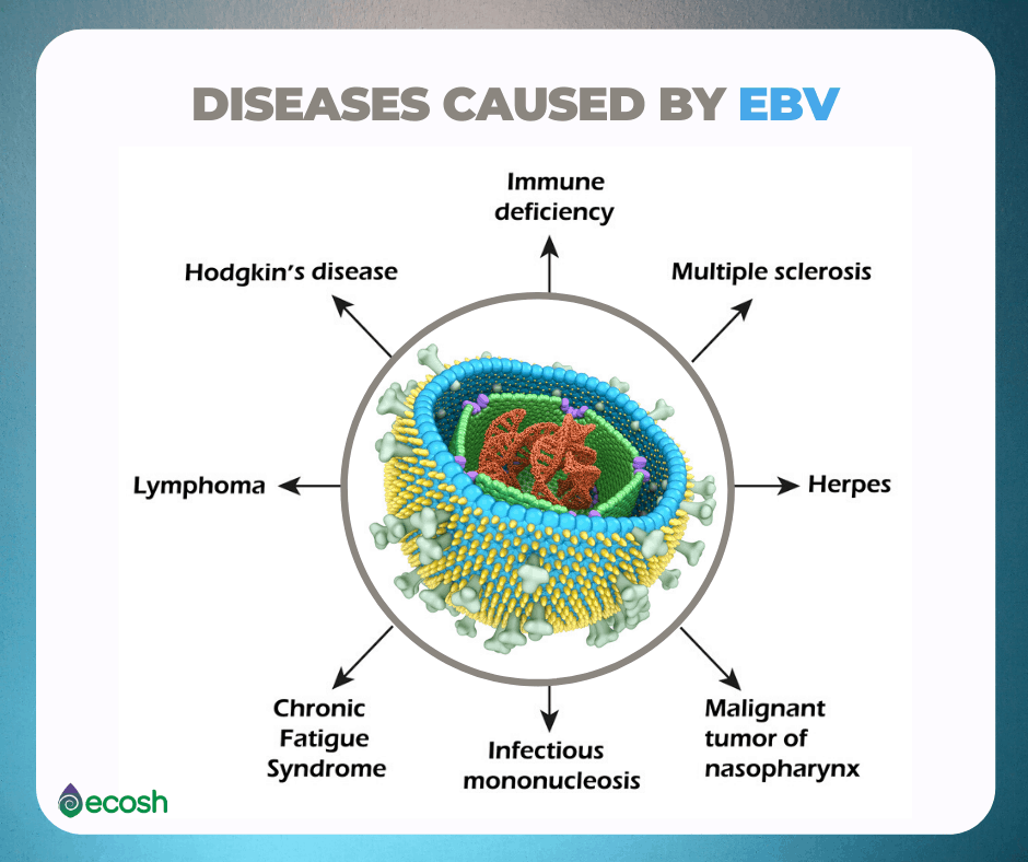 Diseases_Caused_By_Epstein-Barr_Virus