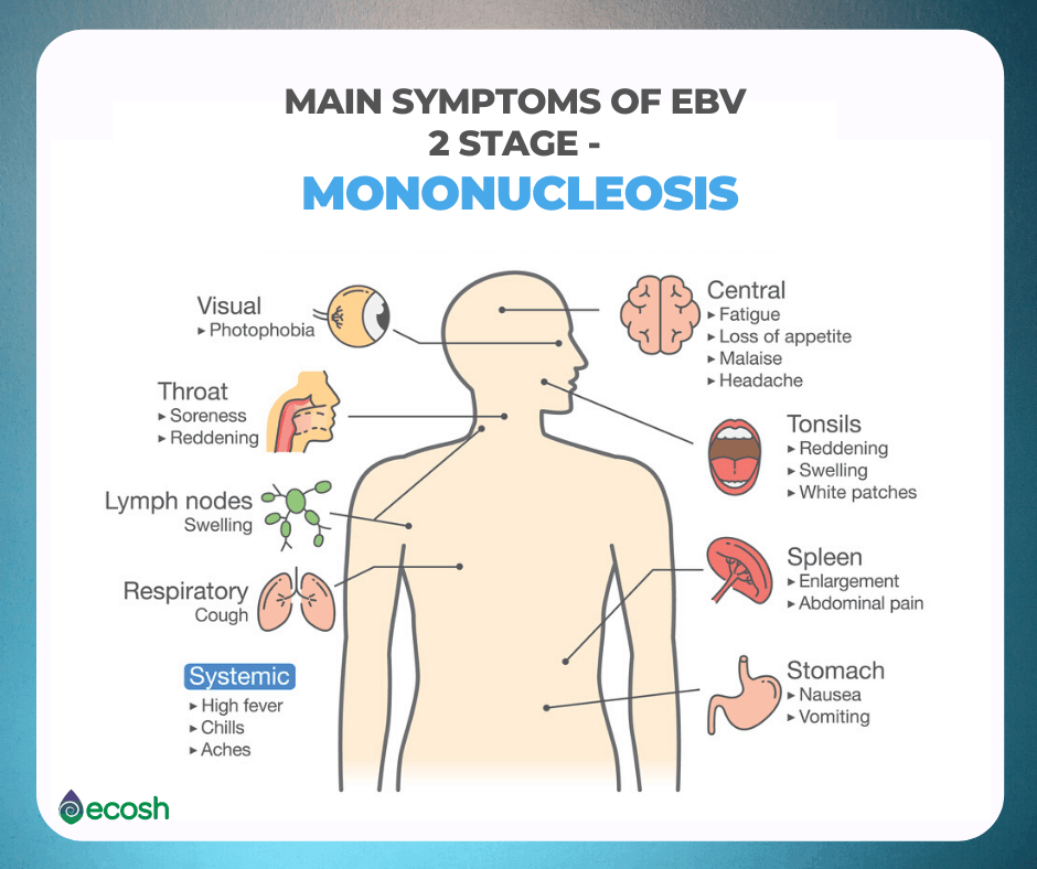 Main_Symptoms_of_EBV_2_Stage_Mononucleosis_Mononucleosis_Symptoms