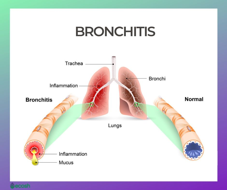 Bronchitis Causes, Symptoms, Emotions Behind Bronchitis and Natural Home Treatment