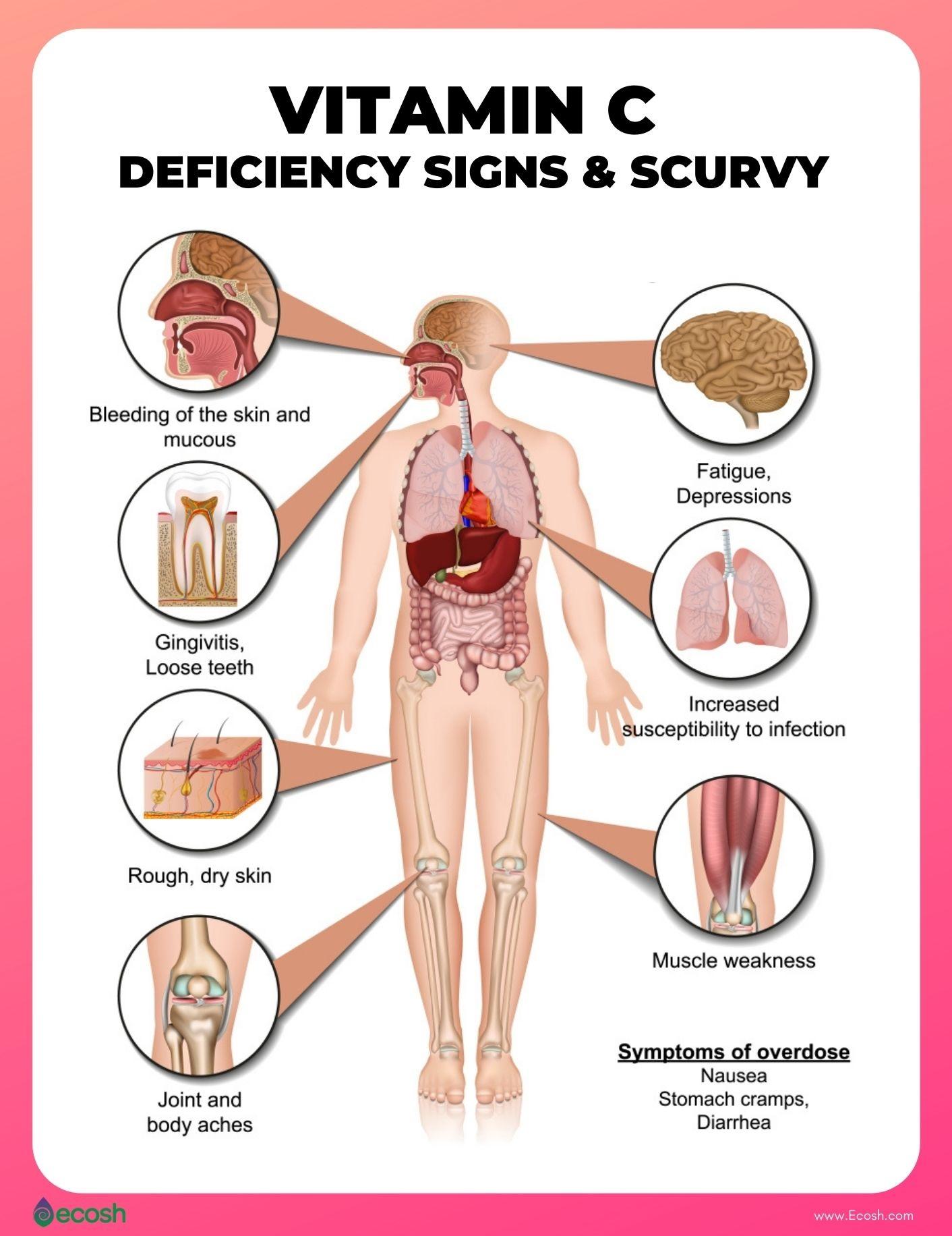 Ecosh_2020_Health_Benefits_of_Vitamin_C_Ascorbic_Acid_Vitamin_C_Deficiency_Symptoms__Vitamin_C_Deficiency_Signs_Scurvy_Treatment_Scurvy_Natural_Treatment
