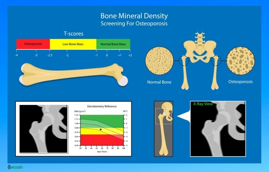Bones_Health_Osteopenia_Stages_Osteoporosis_Stages_Osteoarthritis_Bone_Mineral_Screening_T-scores_Meaning_Screening_for_Osteoporosis_Screening_for_Osteomalacia