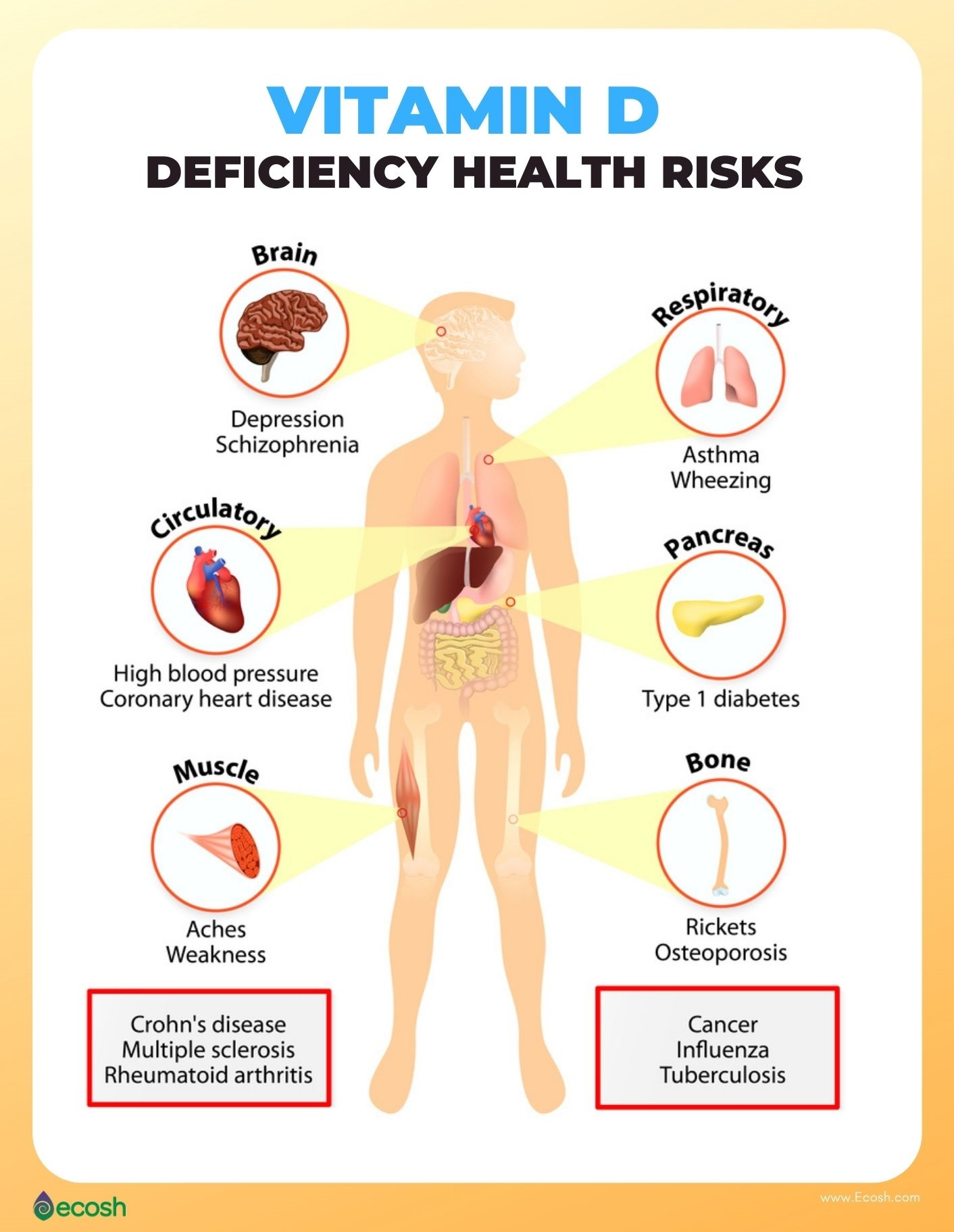 Ecosh_Vitamin_D_Deficiency_Health_Risks_Vitamin_D_Deficiency_Symptoms_Vitamin_D_Deficiency_Signs