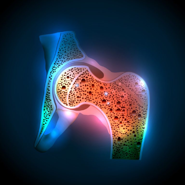 OSTEOPENIA – Symptoms, Causes, Risk Groups, Prevention and Treatment