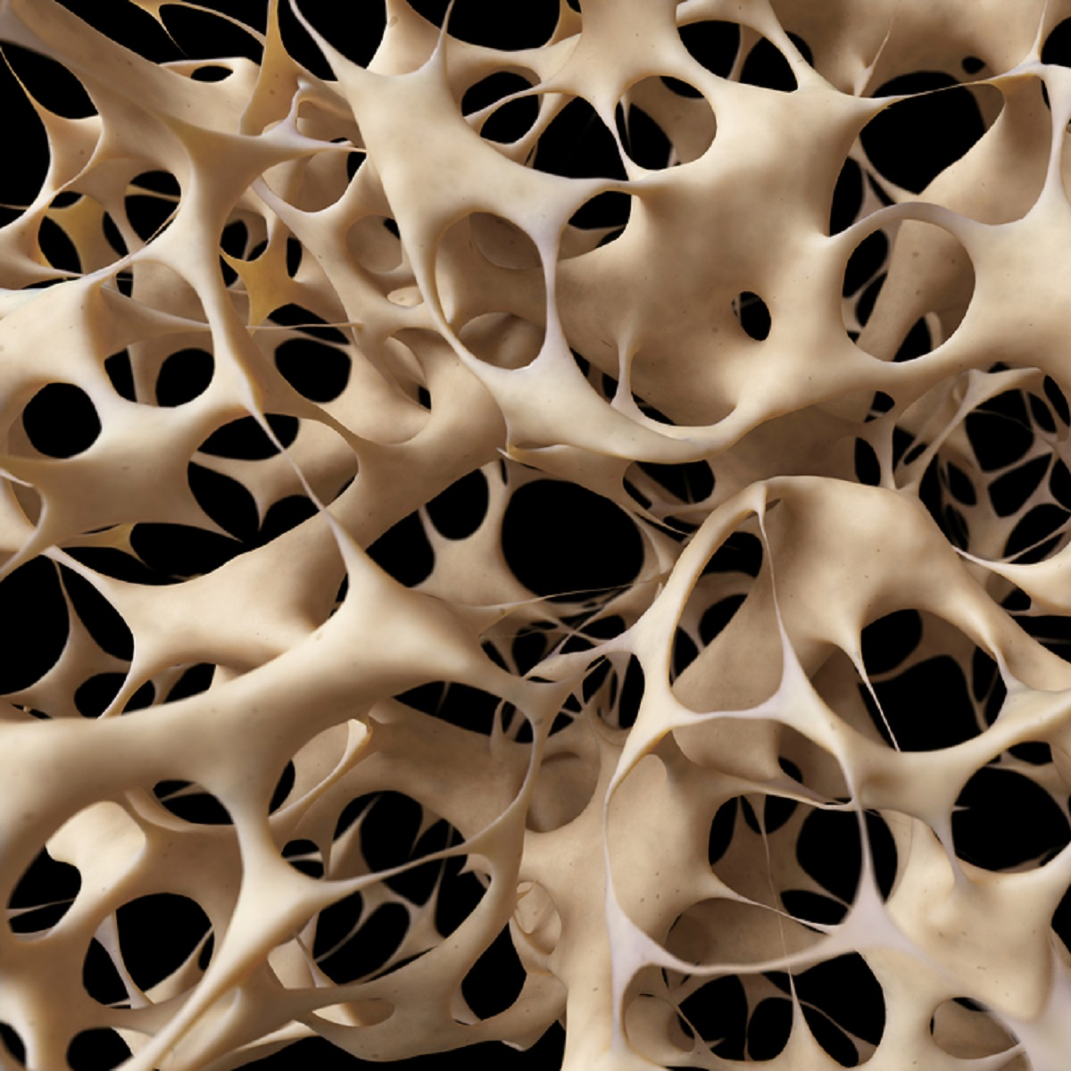 OSTEOPOROSIS – Symptoms, Causes, Risk Groups, Prevention and Treatment