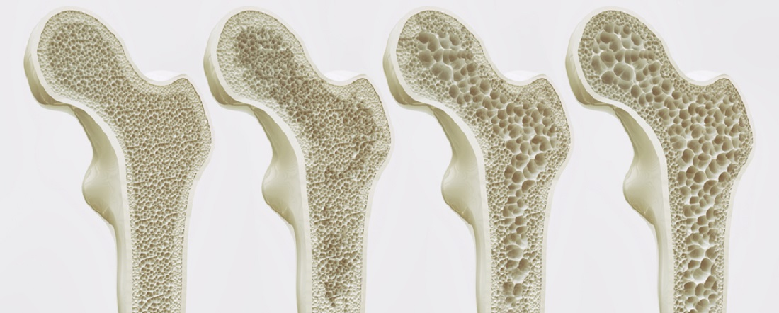 Osteopenia_Treatment_Osteoporosis_Treatment