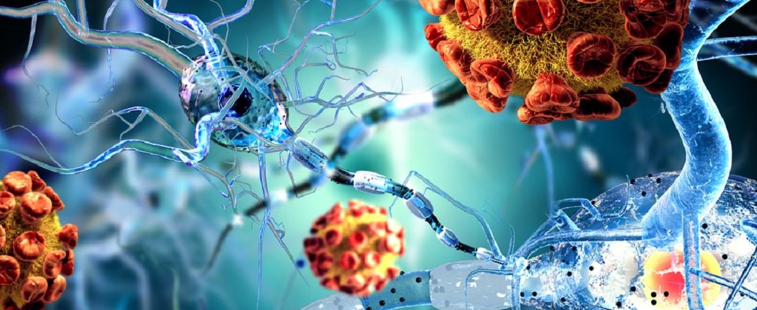 Autoimmune_Diseases_Rheumatoid_Arthritis