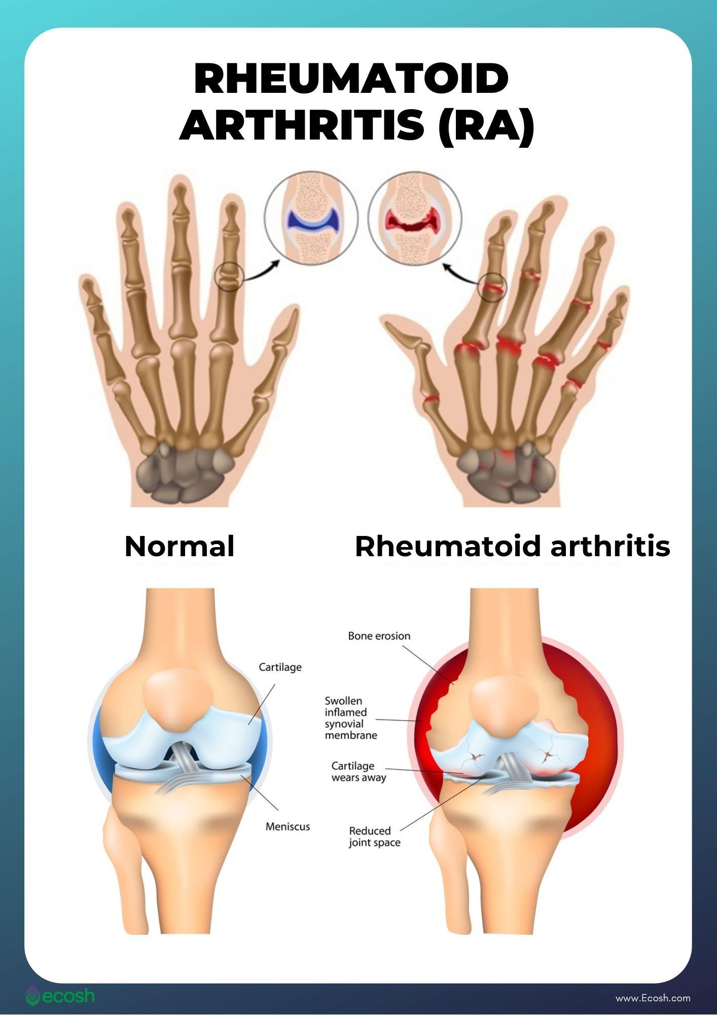 Ecosh_Rheumatoid_Arthritis_Symptoms_Rheumatoid_Arthritis_Causes_Rheumatoid_Arthritis_Signs_Rheumatoid_Arthritis_Risk_Factors_Rheumatoid_Arthritis_Bone_Erosion