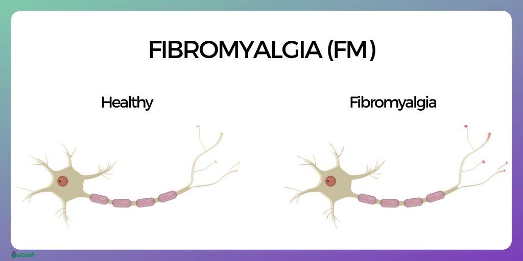 Fibromyalgia_Causes_Fibromyalgia_Risk_Factors_Fibromyalgia_Nerves_Fibromyalgia_and_Pain_Signals (2)