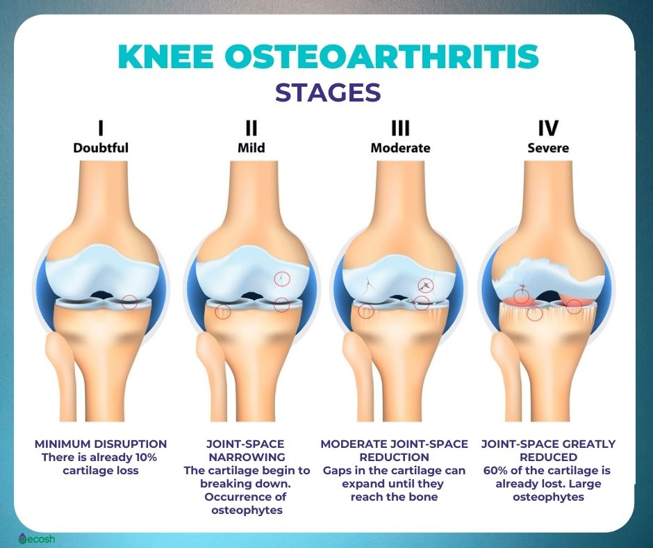 Osteoarthritis_4_Stages