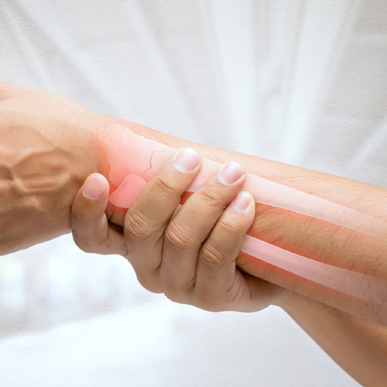 OSTEOARTHRITIS (OA) – Symptoms, Causes, Risk Groups, Prevention and Home Treatment