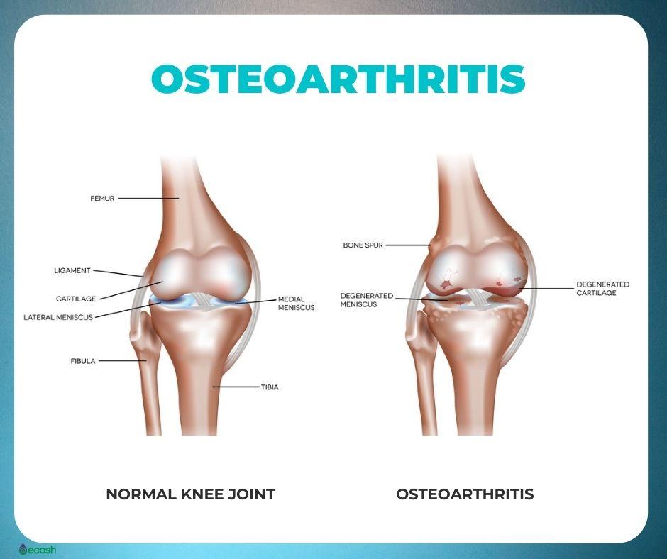 Osteoarthritis_Symptoms_Knee_Osteoarthritis