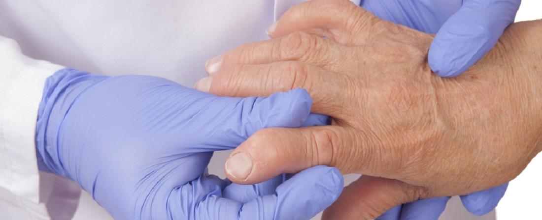 Rheumatoid_Arthritis_Symptoms_and_Signs