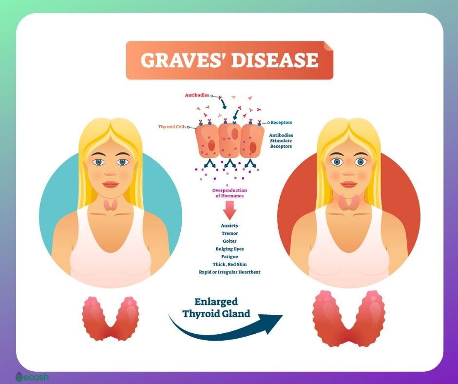 Graves_Disease_Symptoms_Goiter_Bulging_Eyes_Graves_Disease_Cauases