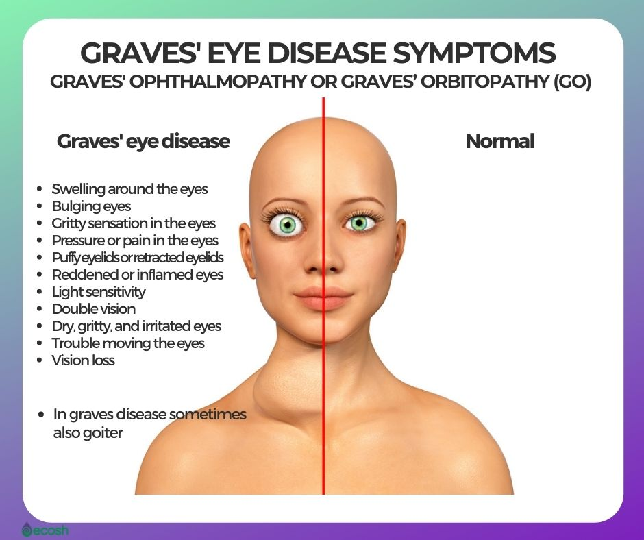 Graves_Eye_Disease_Symptoms_Bulging_Eyes_Goiter_Graves_Eye_Disease_Signs