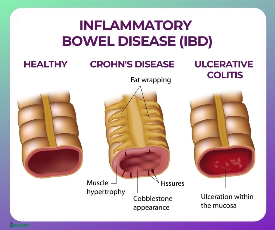 Inflammatory_Bowel_Disease_IBD_Difference_Between_Crohns_Disease_and_Ulcerative_Colitis